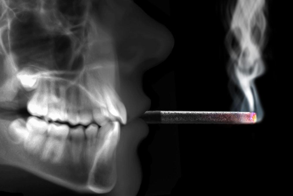 Le tabagisme est le principal facteur de risque du cancer de la bouche