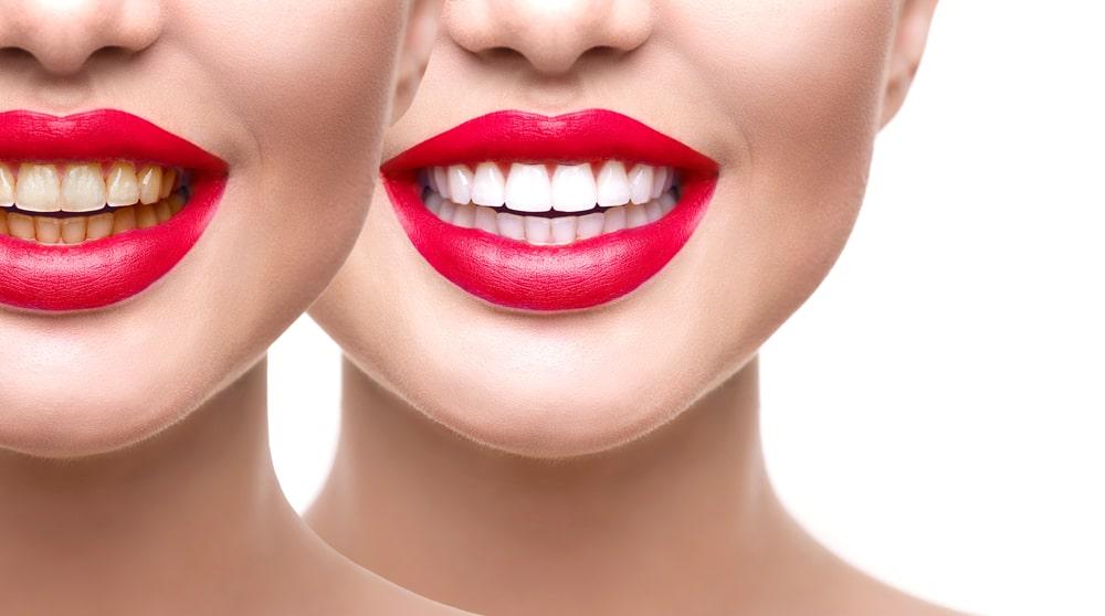 Le blanchiment dentaire professionnel donne des résultats optimaux